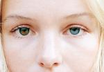 اختلاف العيون